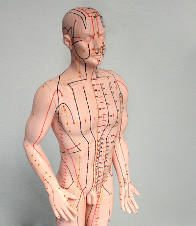 Schmerzakupunktur
